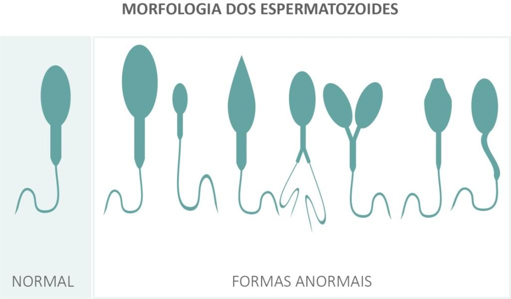 Morfologia_dos_espermatozoides