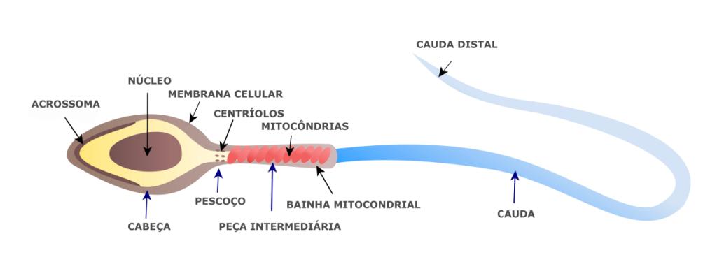 Teratozoospermia_2